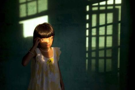 La pequeña Nguyen Thi Ly padece los estragos de la guerra de Vietnam. | Ed Cashi