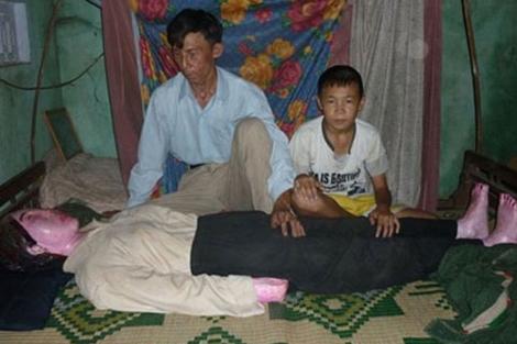 Lleva 7 años durmiendo con los restos de su esposa muerta