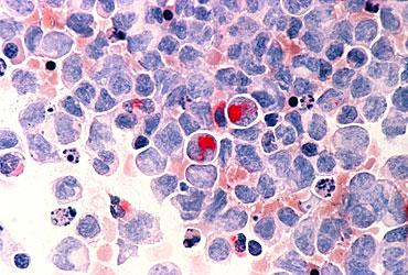 http://estaticos03.cache.el-mundo.net/elmundosalud/imagenes/2010/04/14/1271260690_extras_portada_0.jpg