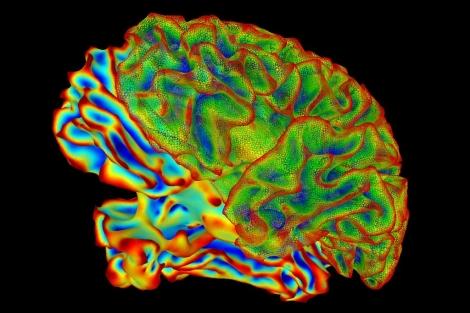 Imagen del cerebro. | NIMH
