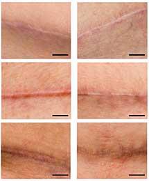 Heridas sin tratar (izqda.) y tratadas con el parche