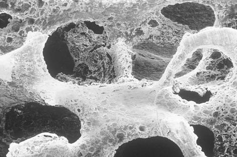 Imagen de un hueso dañado debido a la osteoporosis.   Foto Stock
