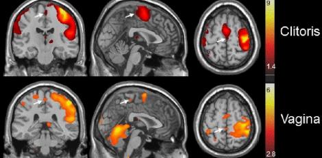 El cerebro se activa de manera diferente según el área estimulada. | Foto: Barry Komisaruk
