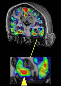 Imagen del PET con contraste. | Neuron